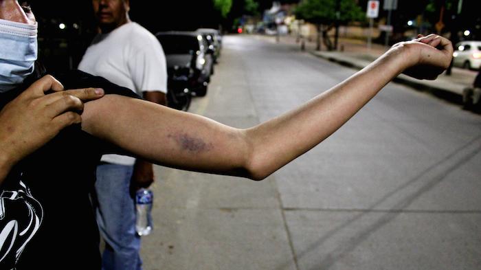 Las autoridades se opusieron a la protesta con todas las fuerzas policiales, servicios especiales y el ejército disponibles en la ciudad de León, Guanajuato