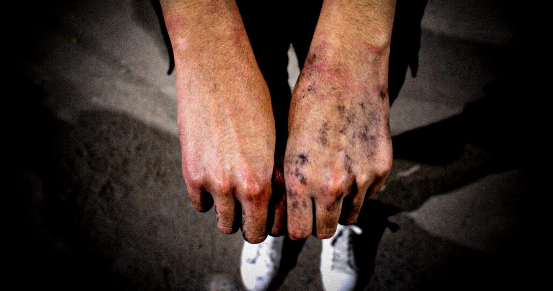 La policía agredió sexualmente a una menor que se encontraba en una marcha de mujeres en Guanajuato.  Redim