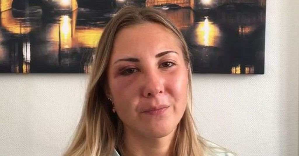 La foto que trastorna a Francia. Tres hombres insultaron y golpearon a una joven en la calle por llevar falda